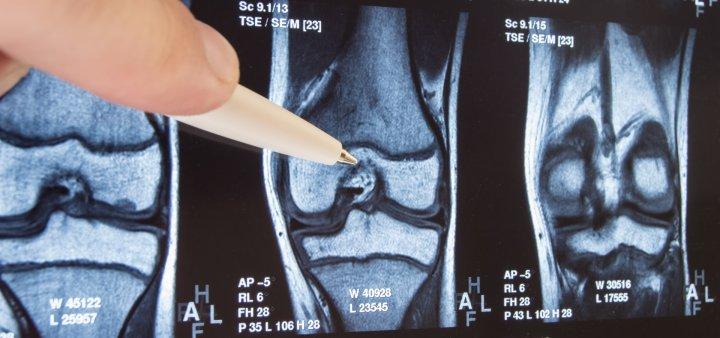 mtr-bern-weiterbildung-radiologiefachperson